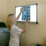 МРТ на Митино в МДЦ МРТ-Центр - анализ снимка