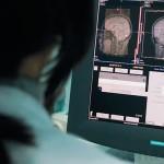 МРТ на Беляево в МРЦ Дикуля - Расшифровка МРТ-снимка