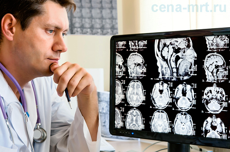Расшифровка снимка МРТ головного мозга с контрастом